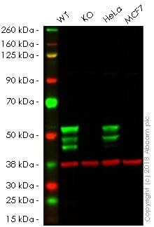 Western blot - Anti-Cytokeratin 7 antibody [SP52] (ab183344)