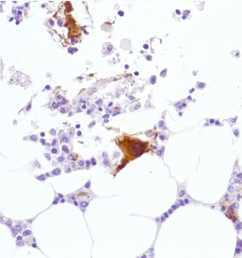 Immunohistochemistry (Formalin/PFA-fixed paraffin-embedded sections) - Anti-CD42b antibody [SP219] (ab183345)