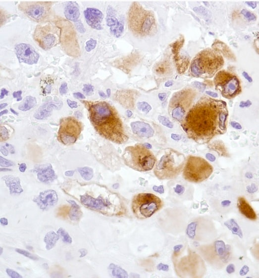 Immunohistochemistry (Formalin/PFA-fixed paraffin-embedded sections) - Anti-TN-X antibody [SP230] (ab183346)