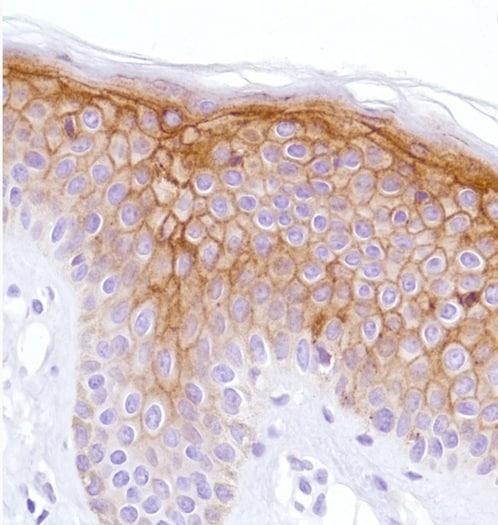 Immunohistochemistry (Formalin/PFA-fixed paraffin-embedded sections) - Anti-LYPD3 antibody [SP204] (ab183353)