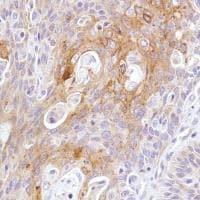 Immunohistochemistry (Formalin/PFA-fixed paraffin-embedded sections) - Anti-LYPD3 antibody [SP208] (ab183357)