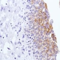 Immunohistochemistry (Formalin/PFA-fixed paraffin-embedded sections) - Anti-LYPD3 antibody [SP208] (ab183357)