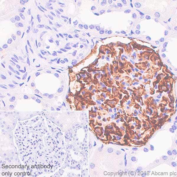 Immunohistochemistry (Formalin/PFA-fixed paraffin-embedded sections) - Anti-CD35 antibody [SP197] (ab183359)