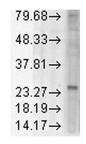 Western blot - Anti-KDEL antibody [KR-10] (HRP) (ab183379)