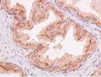 Immunohistochemistry (Formalin/PFA-fixed paraffin-embedded sections) - Anti-Furin antibody [EPR14674] (ab183495)
