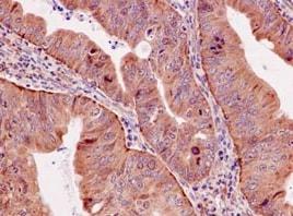 Immunohistochemistry (Formalin/PFA-fixed paraffin-embedded sections) - Anti-BubR1 antibody [EPR12259(2)] (ab183496)