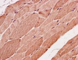 Immunohistochemistry (Formalin/PFA-fixed paraffin-embedded sections) - Anti-SMYD3 antibody [EPR11106(2)] - N-terminal (ab183498)