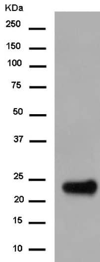Western blot - Anti-Troponin I fast skeletal muscle antibody [EPR14926] (ab183508)