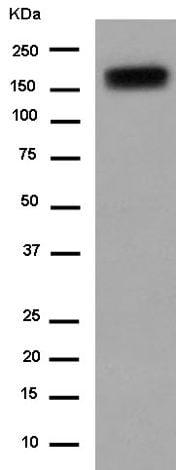 Western blot - Anti-Neogenin antibody [EPR14696] (ab183511)