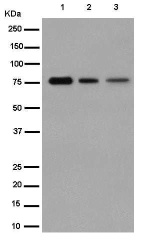Western blot - Anti-Plakophilin 1 antibody [EPR14890] (ab183512)