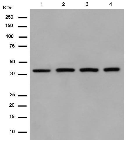 Western blot - Anti-SUCLA2 antibody [EPR14925] (ab183513)