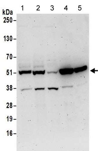 Western blot - Anti-Septin 11 antibody (ab183529)