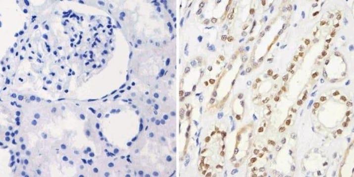 Immunohistochemistry (Formalin/PFA-fixed paraffin-embedded sections) - Anti-PAX8 antibody [1F8-3A8] (ab183573)