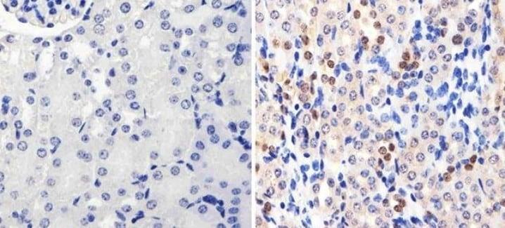 Anti-PAX8 antibody [1F8-3A8] (ab183573)