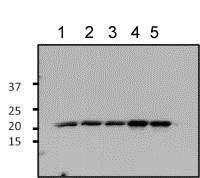 Western blot - Anti-ARF1 antibody (ab183576)