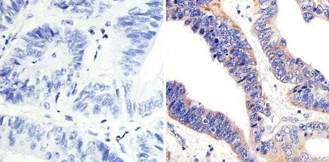 Immunohistochemistry (Formalin/PFA-fixed paraffin-embedded sections) - Anti-ARF1 antibody (ab183576)