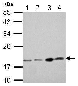 Western blot - Anti-DCTD antibody (ab183607)