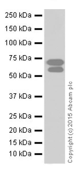 Western blot - Anti-BACE1 antibody [EPR19523] (ab183612)
