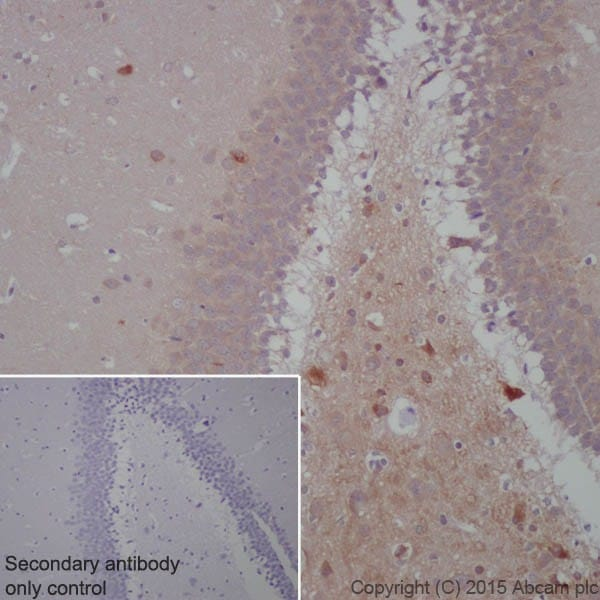 Immunohistochemistry (Formalin/PFA-fixed paraffin-embedded sections) - Anti-BACE1 antibody [EPR19523] (ab183612)