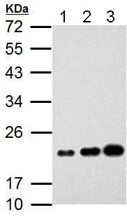 Western blot - Anti-AICDA antibody (ab183618)