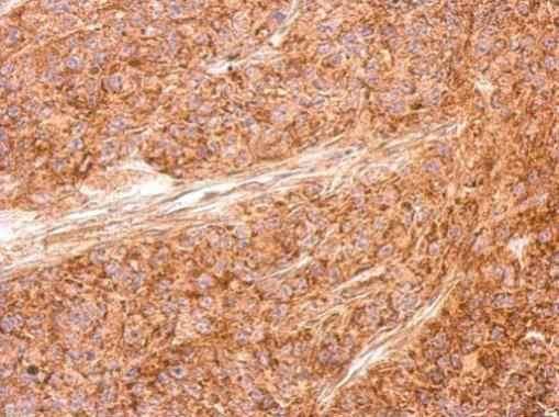 Immunohistochemistry (Formalin/PFA-fixed paraffin-embedded sections) - Anti-AICDA antibody (ab183618)