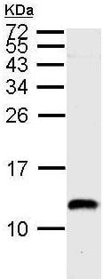 Western blot - Anti-ENY2 antibody (ab183622)