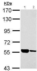 Western blot - Anti-AHAS antibody (ab183633)