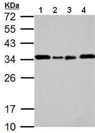 Western blot - Anti-GC1q R antibody (ab183640)