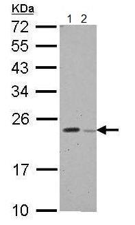 Western blot - Anti-GPX8 antibody (ab183664)