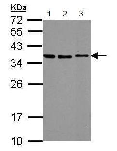Western blot - Anti-Stanniocalcin 2/STC-2 antibody (ab183665)