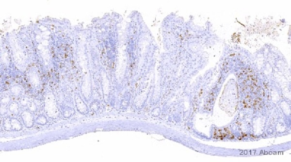 Immunohistochemistry (Formalin/PFA-fixed paraffin-embedded sections) - Anti-CD4 antibody [EPR19514] (ab183685)