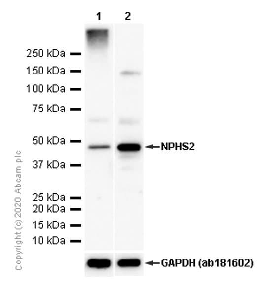 Western blot - Anti-NPHS2 antibody [EPR13819] (ab183703)