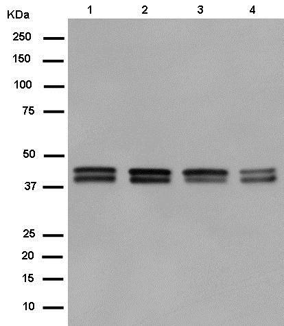 Western blot - Anti-PON2 antibody [EPR15295-82] (ab183710)