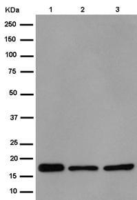 Western blot - Anti-NDUFB11 antibody [EPR15252] (ab183716)