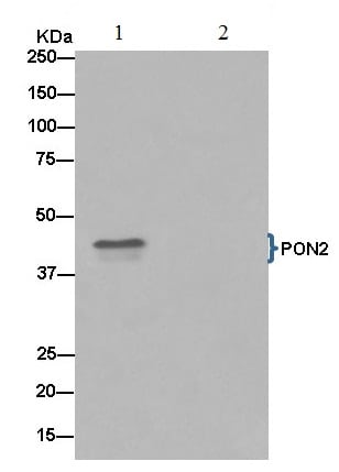 Immunoprecipitation - Anti-PON2 antibody [EPR15295-58] (ab183718)