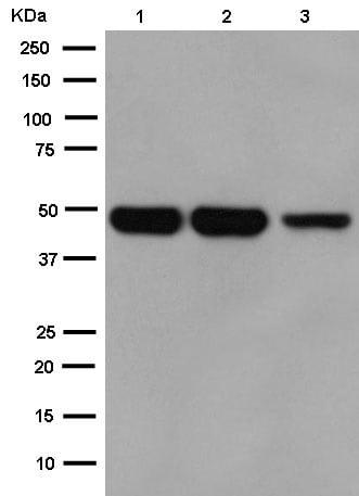 Western blot - Anti-CRTAP/CASP antibody [EPR15122(B)] (ab183720)