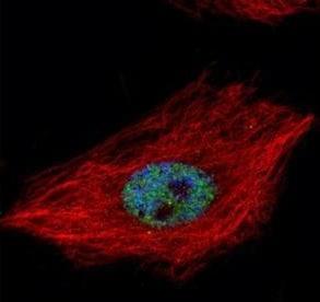 Immunocytochemistry/ Immunofluorescence - Anti-TDP43 antibody (ab183752)
