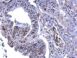 Immunohistochemistry (Formalin/PFA-fixed paraffin-embedded sections) - Anti-Histone H3 (phospho S28) antibody (ab183767)