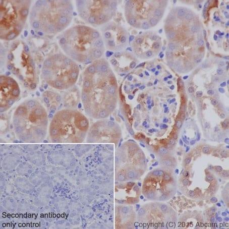 Immunohistochemistry (Formalin/PFA-fixed paraffin-embedded sections) - Anti-Ferritin Heavy Chain antibody [EPR18878] (ab183781)