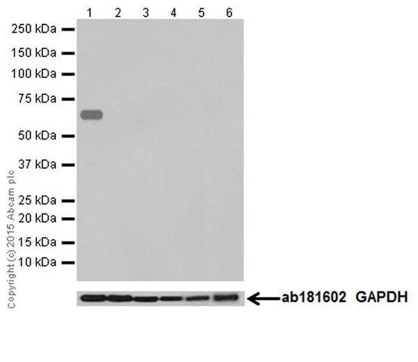 Western blot - Anti-Kappa Opioid Receptor antibody [EPR18881] (ab183825)
