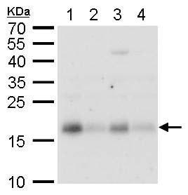 Western blot - Anti-CHAC2 antibody (ab183852)
