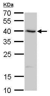 Western blot - Anti-SerpinB8 antibody (ab183865)