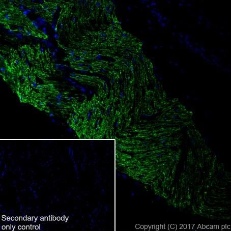 Immunohistochemistry (Frozen sections) - Anti-Myelin Protein Zero antibody [EPR20383] (ab183868)