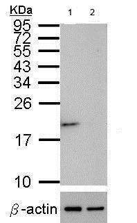 Western blot - Anti-Superoxide Dismutase 1 antibody (ab183881)