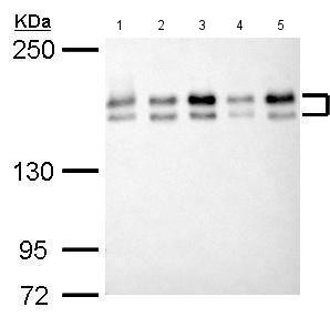 Western blot - Anti-EHMT2/ G9A antibody (ab183889)
