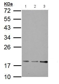 Western blot - Anti-BET3 antibody (ab183903)