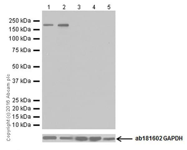Western blot - Anti-NMDAR2B antibody [EPR19295] (ab183942)