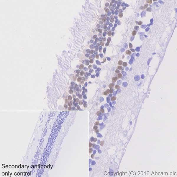 Immunohistochemistry (Formalin/PFA-fixed paraffin-embedded sections) - Anti-Otx2 antibody [EPR20375] (ab183951)