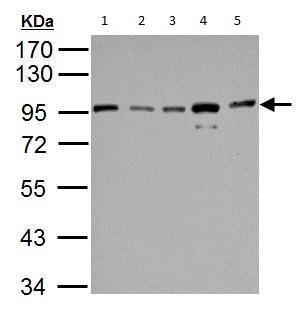 Western blot - Anti-IKK beta antibody (ab183966)