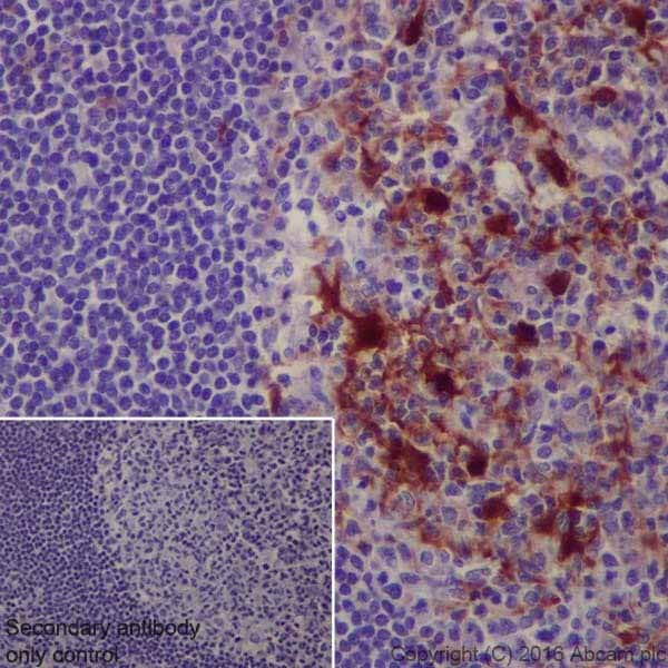 Immunohistochemistry (Formalin/PFA-fixed paraffin-embedded sections) - Anti-S100 alpha antibody [EPR19013] (ab183979)